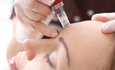 Microneedle mesotherapy, treatment woman at the beautician